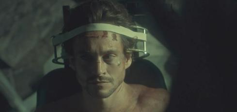 Hannibal 3.07 Will surgery