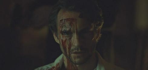 Hannibal 3.07 Will